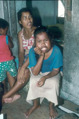 Pictures of birth defects in the bikini atolls